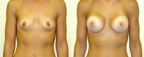 Breast Augmentation 13