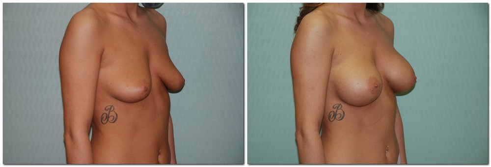 Breast Augmentation 15 - Silicone