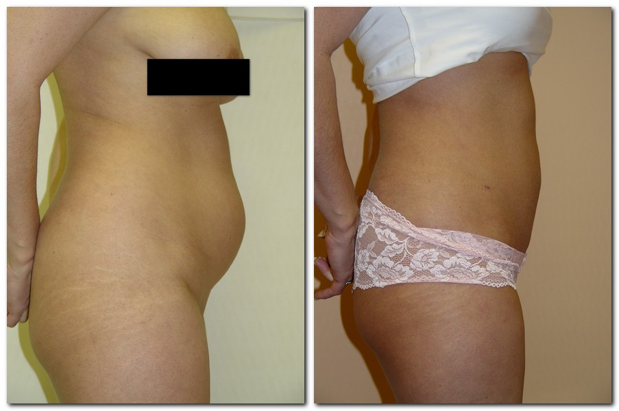 Liposuction 10