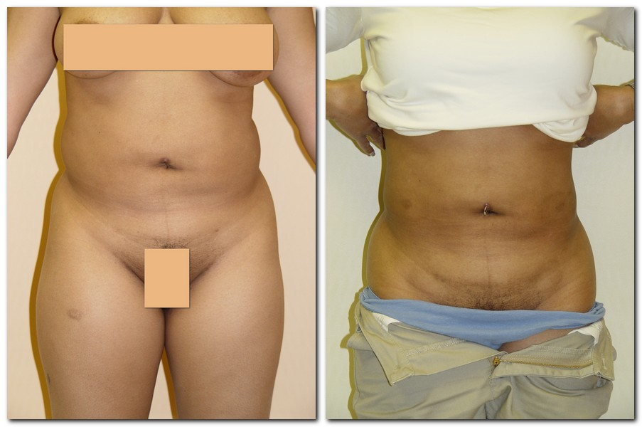 Liposuction 15