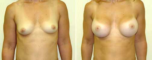 Breast Augmentation 3)