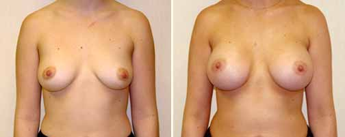 Breast Augmentation 4
