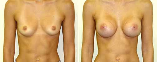 Breast Augmentation 5