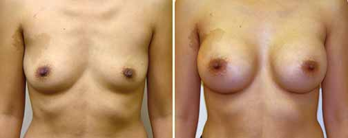 Breast Augmentation 9