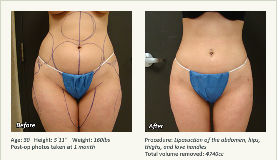 Recovery Time For Liposuction What To Expect