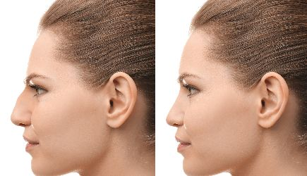 Rhinoplasty Surgery Performed By A Cosmetic Surgeon In Boston